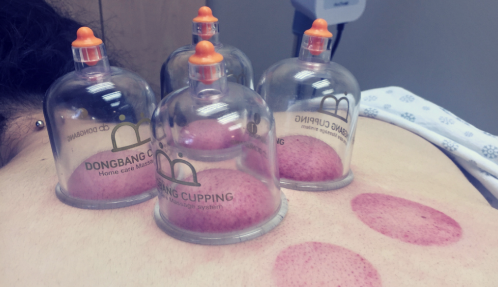 The Countless Benefits of Cupping 3