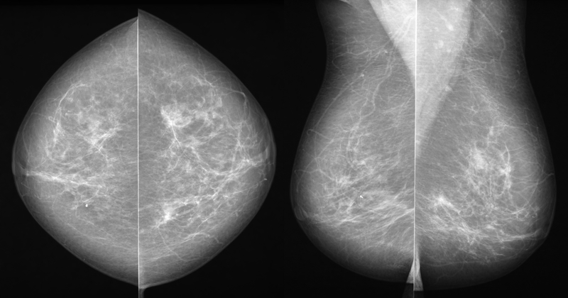 Analog (Film) Mammogram