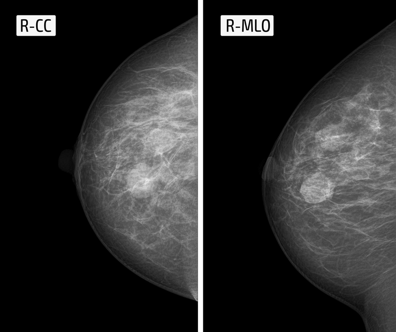 Tomosynthesis (3D Mammography)